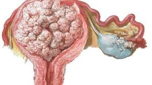 斷食後會被縮小的瘤
